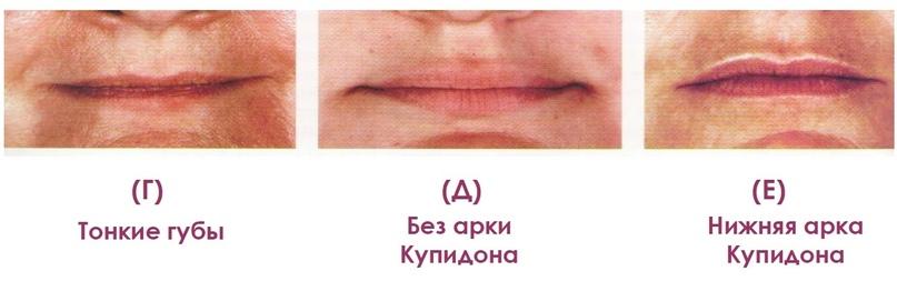 Губы и область вокруг рта., изображение №22