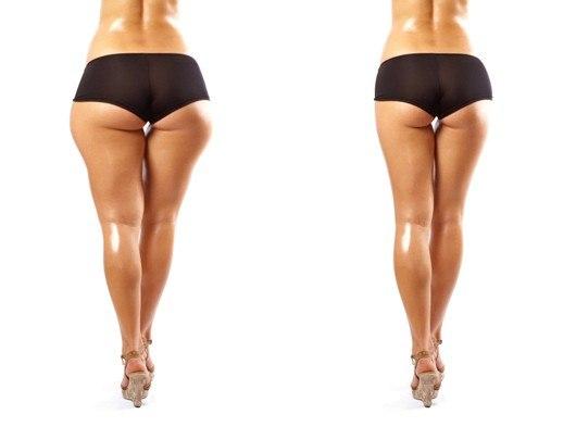 Секреты Похудения Бедер. Секреты похудения бедер и ягодиц