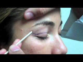 Dr. Jeffrey Epstein - Mark-Up for Upper Eyelid Blepharoplasty - Female Patient