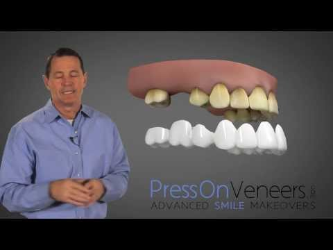 Don't Buy DENTURES You have another Choice