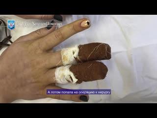 В Вологде 13-летней девочке возможно занесли инфекцию в салоне красоты, делая маникюр
