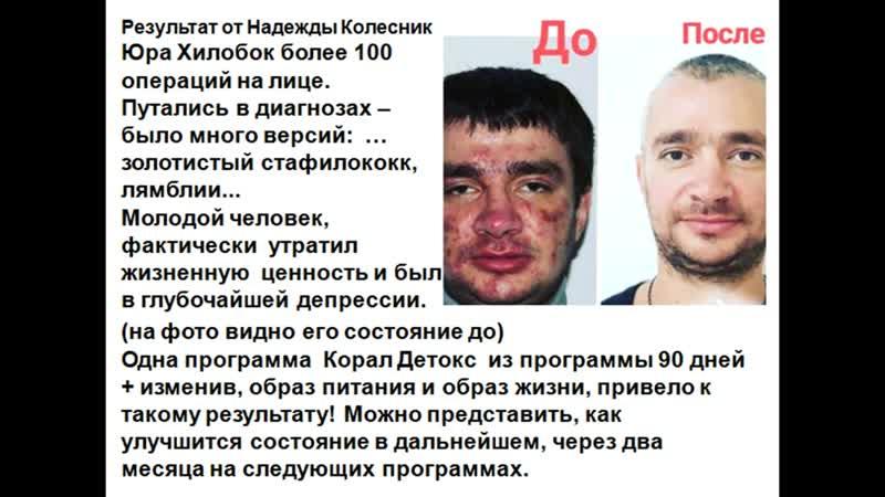 Результат после более 100 операций на лице и программы Корал Детокс Юрий Хилобок