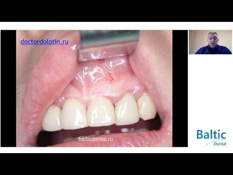 Вебинар Долотин Д.А. - «Дентальная имплантация во фронтальном отделе верхних челюстей»