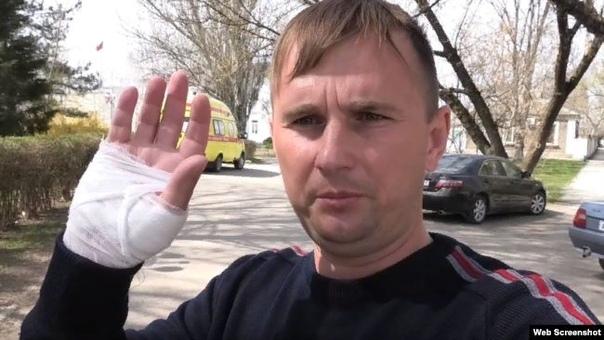 «Прием» с телесными повреждениями: инцидент с активистом в приемной крымского чиновника