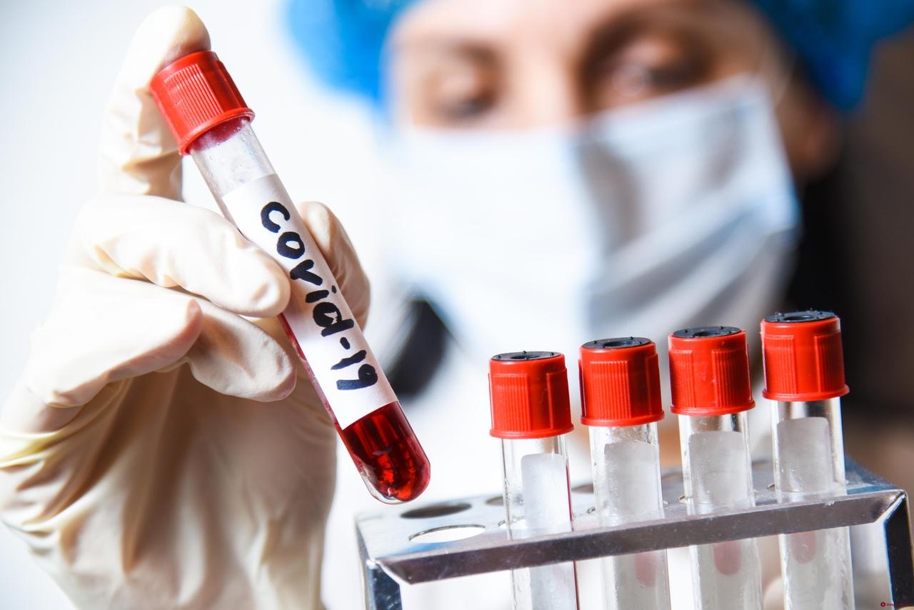 Мэр Славянска сдал тест на COVID-19: результат уже известен