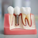 Зубной имплант Osstem с установкой. Акция