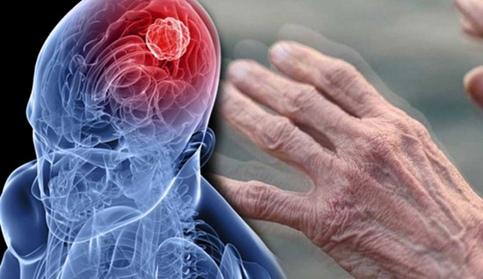 Всемирный день борьбы с болезнью Паркинсона, изображение №2